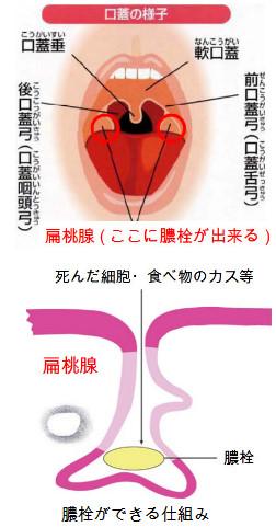 膿 栓 コロナ